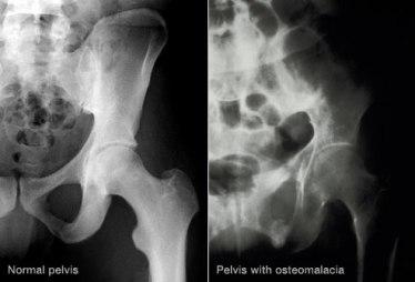 princ_rm_of_xray_of_pelvis_with_osteomalacia (1)